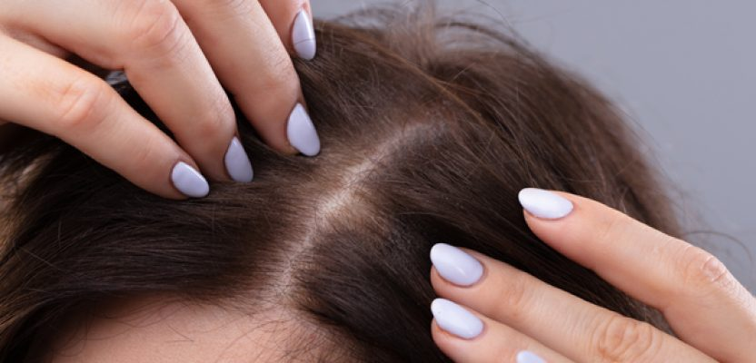 How to reduce DHT level in scalp naturally